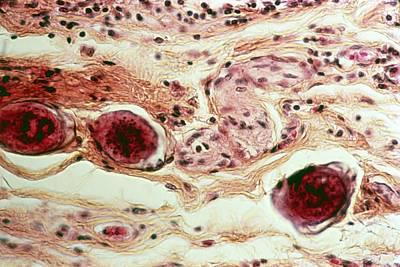 Schistosome Eggs Poster by Cnri