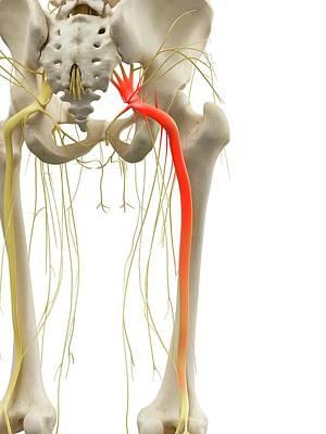Sciatic Nerve Poster