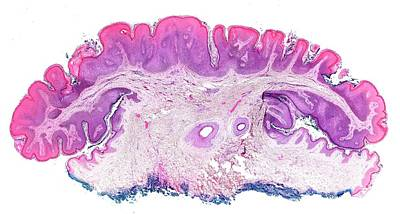 Seborrhoeic Keratosis Poster by Microscape