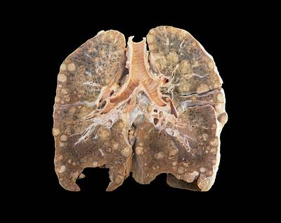 Secondary Lung Cancer Poster