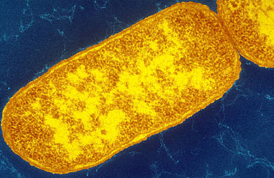 Sem Image Of Escherichia Coli Poster by Biology Pics