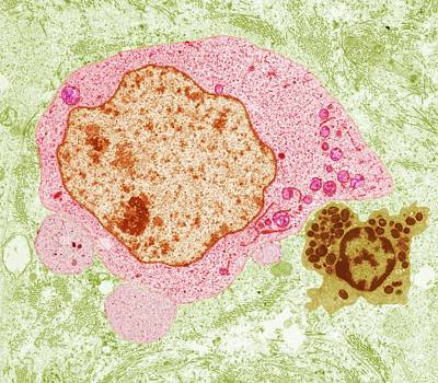 Seminoma Cancer Cell Poster