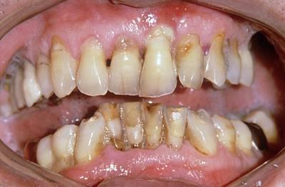 Severe Gum Disease Poster by Dr. J.p. Casteyde/cnri
