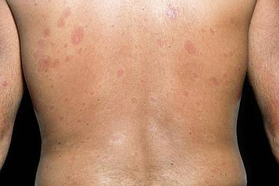 Skin Plaques In Systemic Sclerosis Poster by Science Photo Library