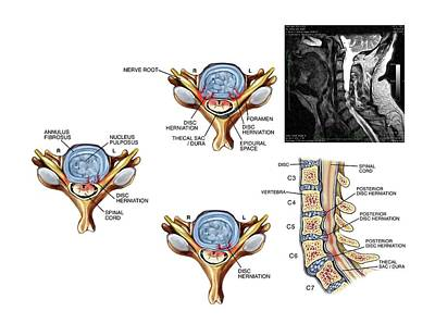 Slipped Discs In The Cervical Spine Poster by John T. Alesi