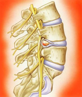 Slipped Intervertebral Disc Poster