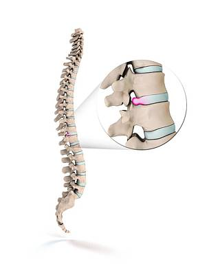 Spinal Disc Prolapse Poster