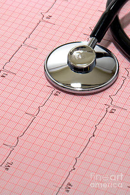 Stethoscope Over Ekg Poster
