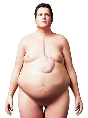 Stomach Of Overweight Man Poster