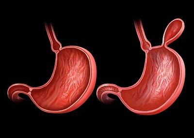 Stomach With And Without Hernia Poster by Pixologicstudio