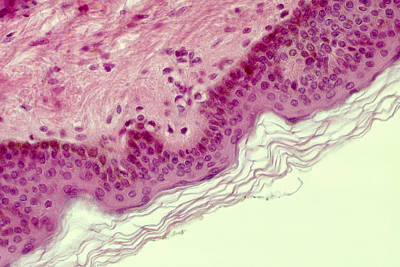 Stratified Squamous Epithelium Poster by Biology Pics