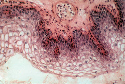 Stratified Squamous Epithelium, Lm Poster by Robert Knauft / Biology Pics