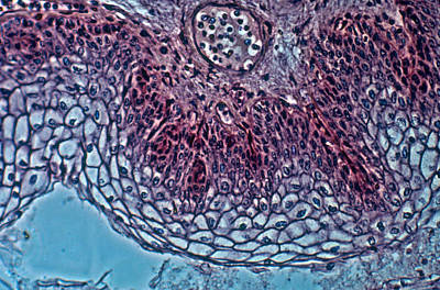 Stratified Squamous Epithelium Poster by Robert Knauft / Biology Pics