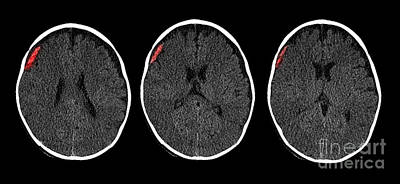 Subdural Hematoma In 6 Month Old, Ct Poster
