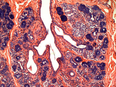 Sweat Gland Poster by David M. Phillips