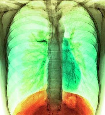 Tension Pneumothorax Poster by Du Cane Medical Imaging Ltd