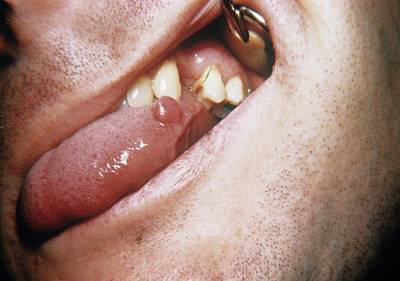 Tongue Tumour Poster by Cnri
