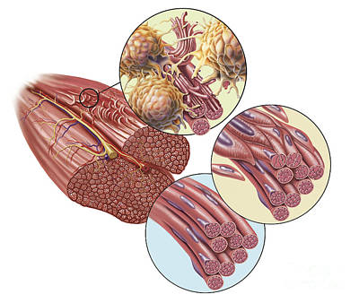 Torn Muscle Fibers With Healing Stages Poster