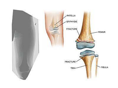 Type II Salter Fracture In The Knee Poster by John T. Alesi