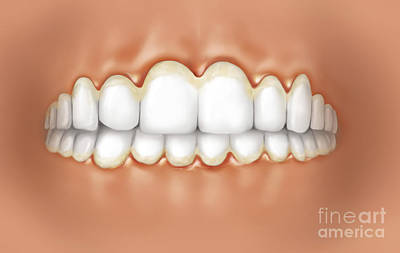 View Of Teeth Showing Gingivitis Poster by TriFocal Communications