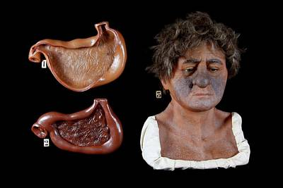 Wax Model Of The Effects Of Alcohol Poster