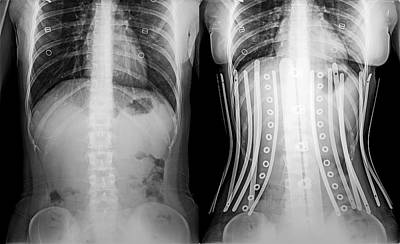 Woman Wearing A Corset X-ray Poster by Photostock-israel
