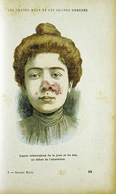 Woman With Lupus Vulgaris Poster by Universal History Archive/uig