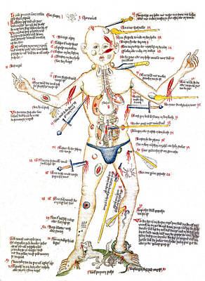 Wound Man, 1420s Poster by Wellcome Images