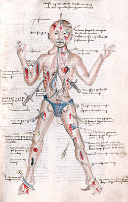 Wound Man, 1485 Poster by Science Source