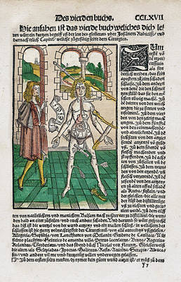 Wound Man And Alchemy Poster by National Library Of Medicine