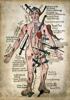 Wound Man Medieval Anatomy Illustration C. 15th Century Poster