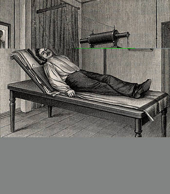 X-ray Of A Patient's Thorax Poster by Universal History Archive/uig