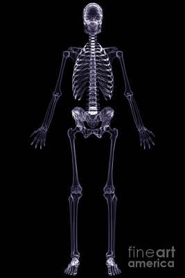 X-ray Skeleton Poster