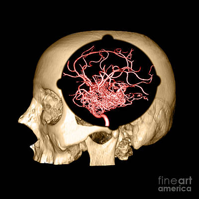 3d Image Of Skull And Brain Avm Poster by Medical Body Scans
