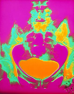 Coloured Urogram Of A Healthy Human Bladder Poster by Volker Steger