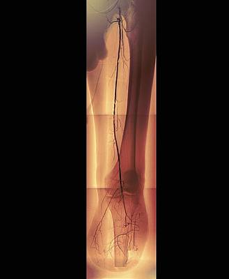 Diabetic Amputee, Angiogram Poster by Zephyr