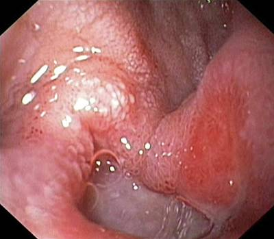 Duodenal Ulcer Poster by Gastrolab