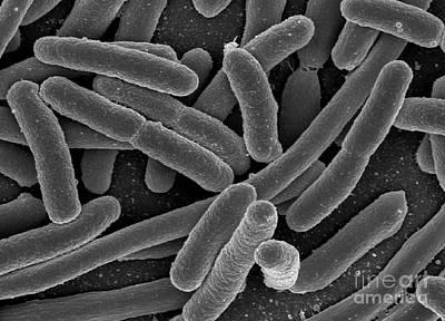 Escherichia Coli Bacteria, Sem Poster by Science Source