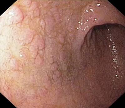 Gastric Metaplasia In The Duodenum Poster