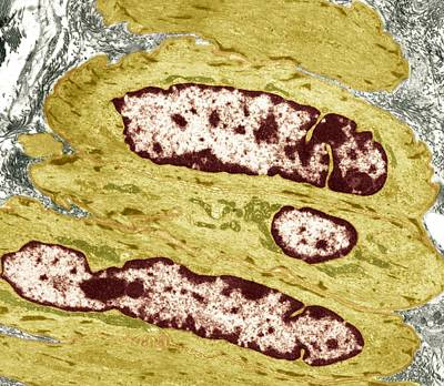 Intestinal Smooth Muscle Cells, Tem Poster by Steve Gschmeissner