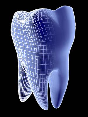 Molar Tooth Poster by Pasieka