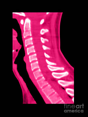 Normal Cervical Spine Poster by Medical Body Scans