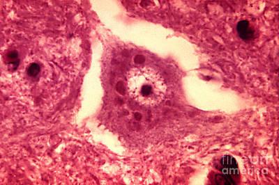 Rabies Virus, Negri Bodies, Lm Poster
