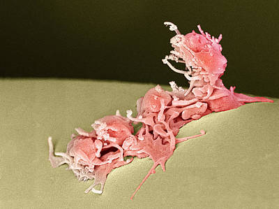 Activated Platelets, Sem Poster by Steve Gschmeissner