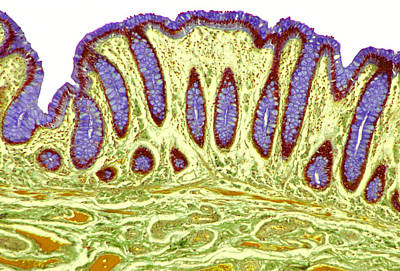 Colon Lining, Light Micrograph Poster by Steve Gschmeissner