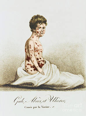 Development Of Smallpox Poster by Science Source