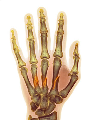 Fractured Palm Bones Of Hand, X-ray Poster by