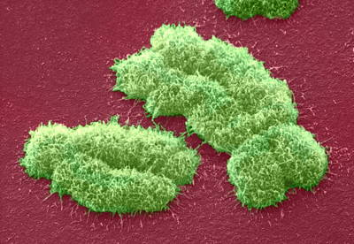 Human Chromosomes, Sem Poster by Power And Syred