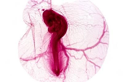 Chicken Embryo, Light Micrograph Poster