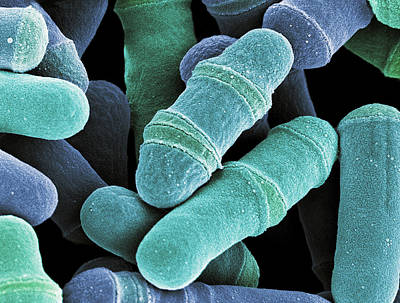 Dividing Yeast Cells, Sem Poster by Steve Gschmeissner